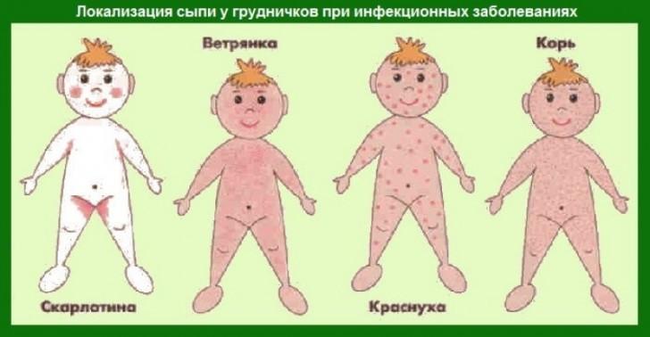 Как выглядит аллергия у детей с
