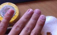 Можно ли и как избавиться от грибка ногтей