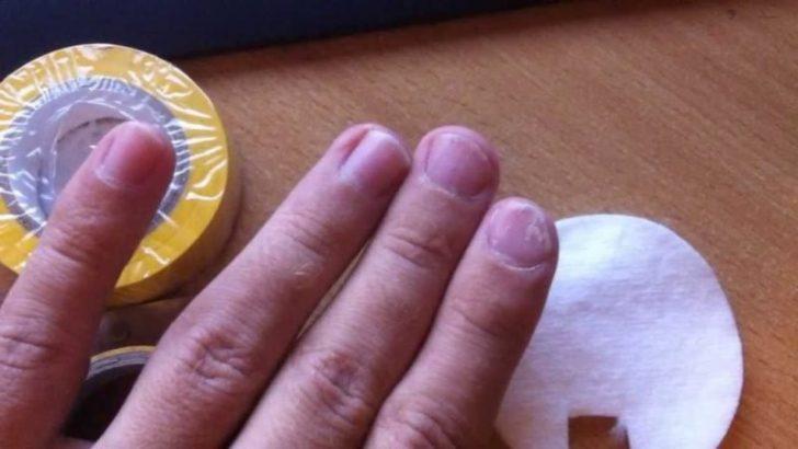 Борьба с грибком ногтей ног