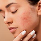 Салициловая кислота - для чего используется в медицине и косметологии